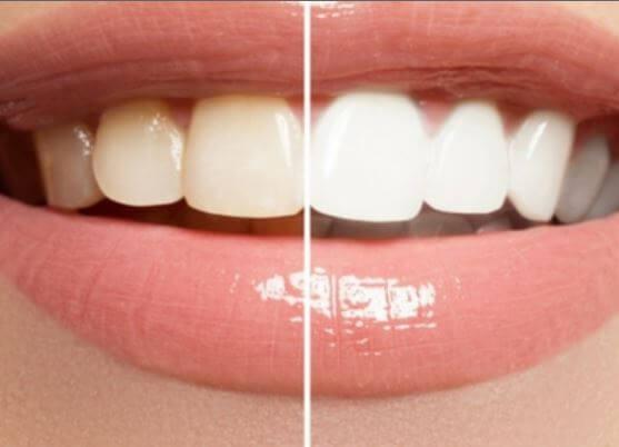 Beauty-Wellness-tandblegning.jpg