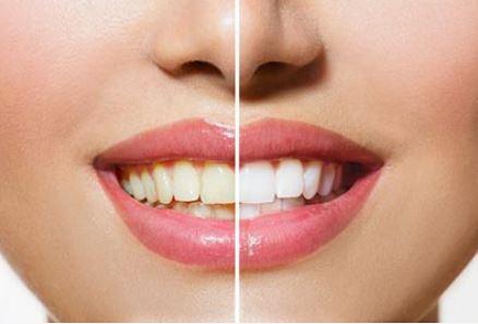 Dentalklinikken-tandblegning.jpg